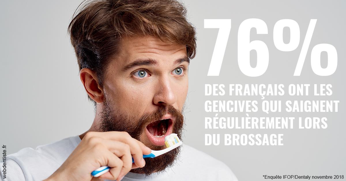 https://dr-alexandre-fevre.chirurgiens-dentistes.fr/76% des Français 2
