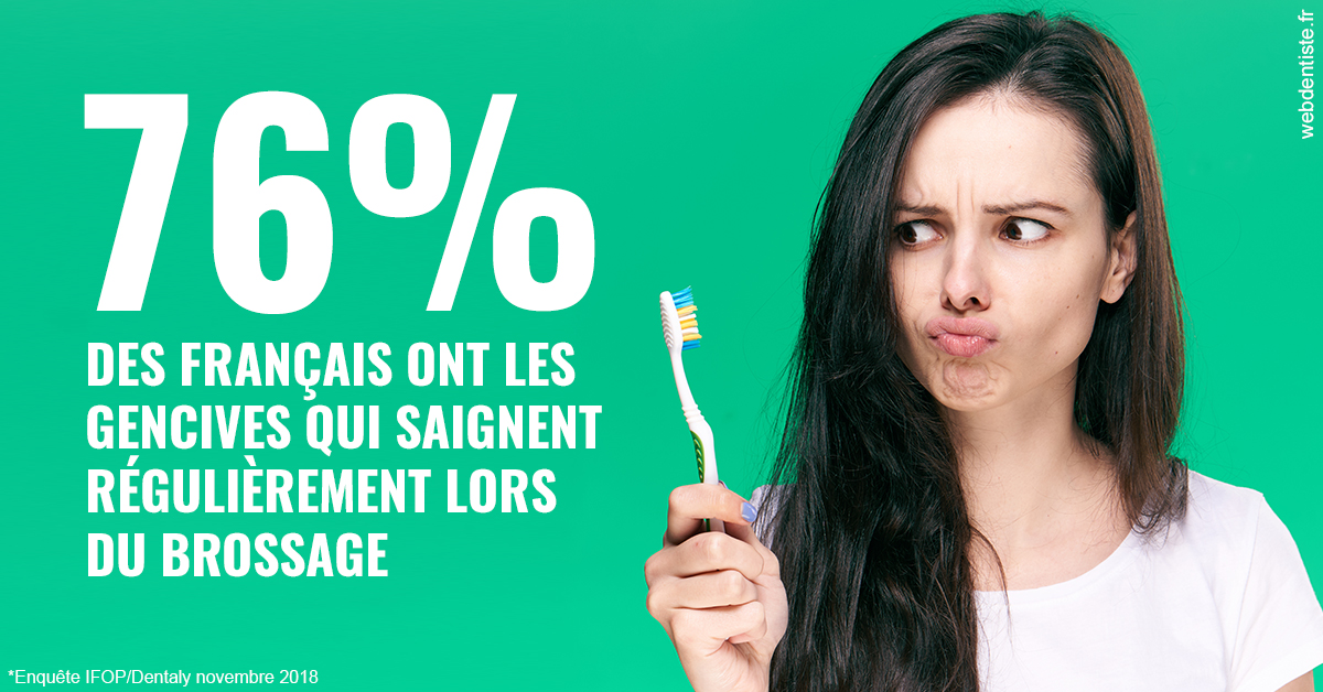 https://dr-alexandre-fevre.chirurgiens-dentistes.fr/76% des Français 1